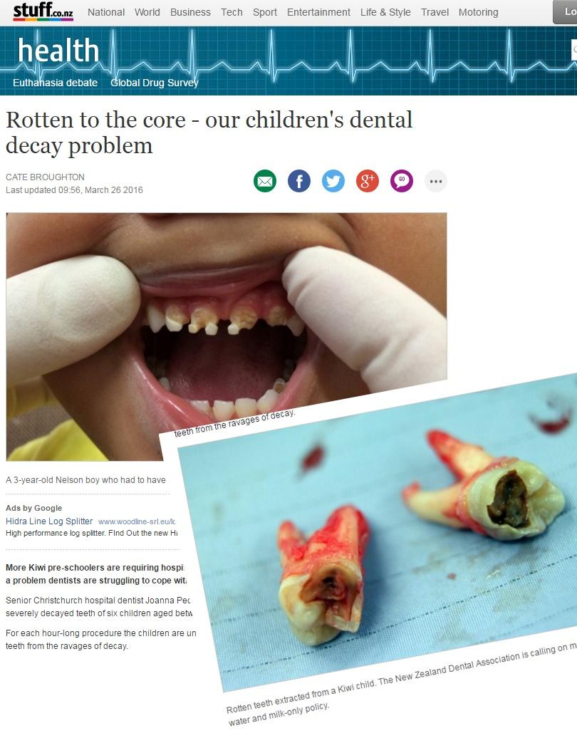 Hammaslääkäri varoittaa vanhempia – julkaisi järkyttävän kuvan 3-vuotiaan hampaista - Lifestyle ...