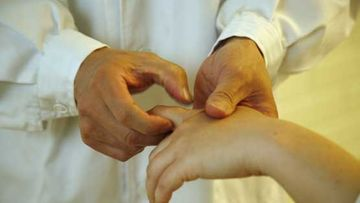 Akupunktio on turvallinen hoitomuoto.