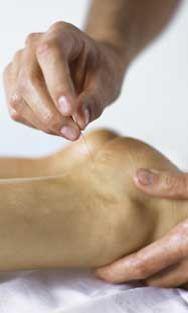 Akupunktio poisti piinaavan kivun.