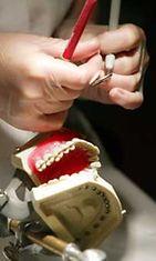 Hampaidenhuoltoon on tarjolla monia hoitoja.