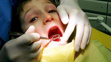 Pyörtyminenkään ei ole tavatonta hammaslääkärin vastaanotolla.