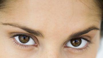 Ruskeasilmäiset saavat herkemmin vitiligon.