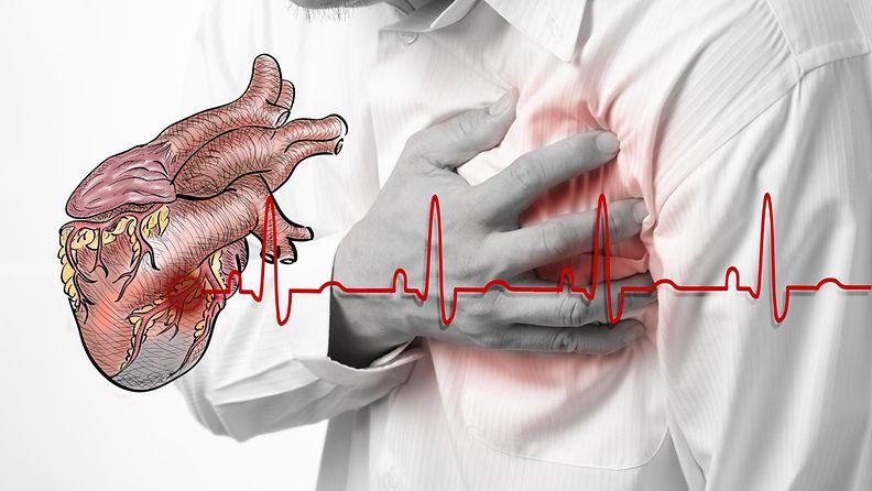 sydänkohtaus.JPG
