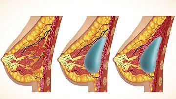 Rinta ennen leikkausta, rintalihaksen päälle (kesk.) ja alle (oik.) asennettu implantti.