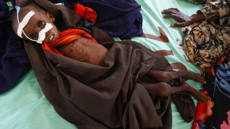 Two-year-old severely malnourished Somali refugee boy Fariyo Yusuf lays on a bed with his mother at the Ifo camp, one of three camps that make up sprawling Dadaab refugee camp, in Dadaab, northeastern Kenya, on 02 August 2011.