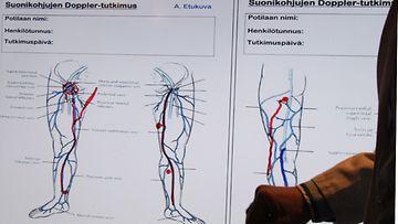 Tom Schröder, kirurgian professori Laser Tilkasta esittelee esittelee suonikohjujen syntyä