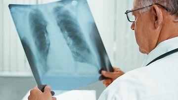 Lääkäri keuhkosyöpä