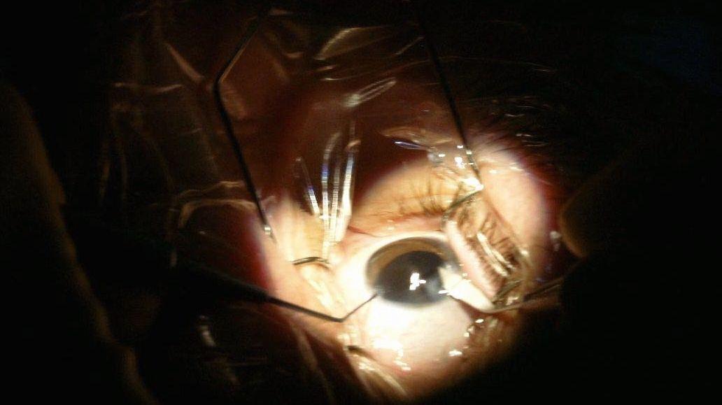 Silmäleikkaus Hinta