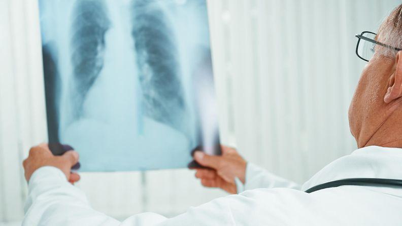 keuhkot, röntgenkuva, lääkäri