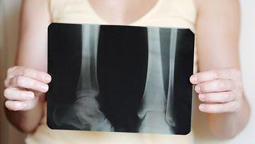 osteoporoosi (2)
