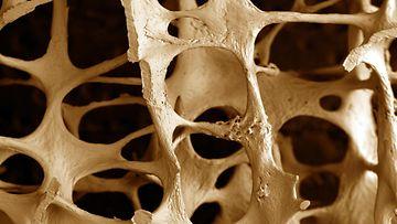osteoporoosi (1)