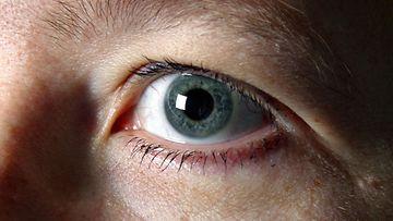 Silmämelanooma