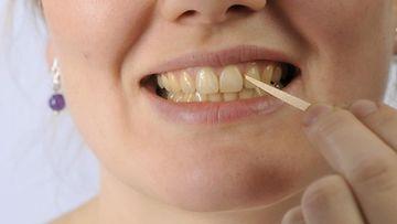 Hampaat