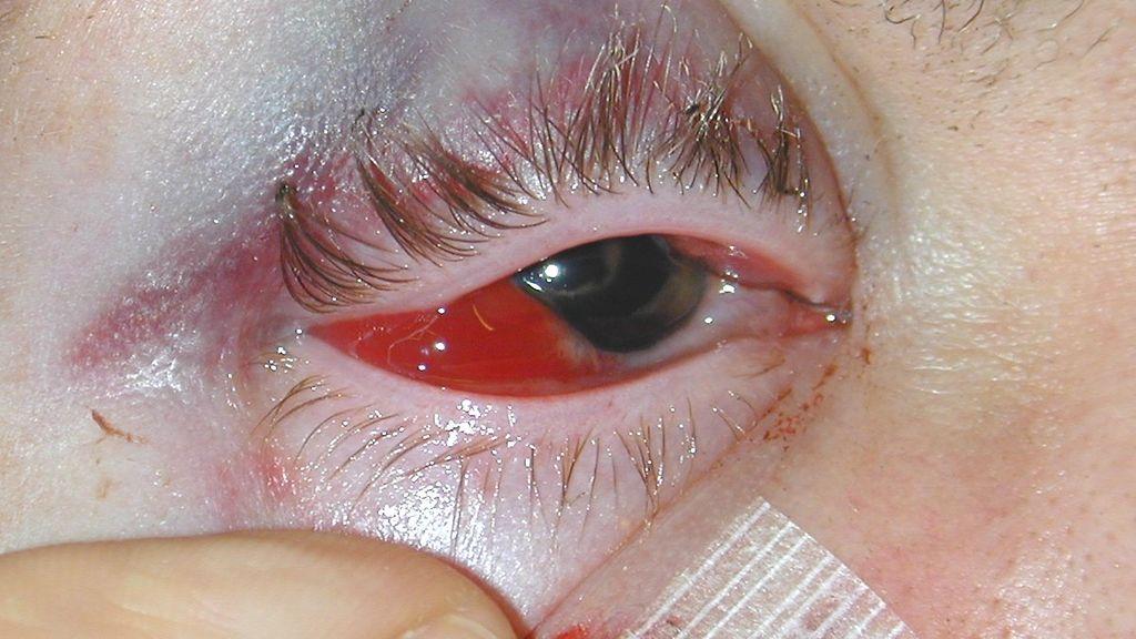 Silmä Verenpurkauma