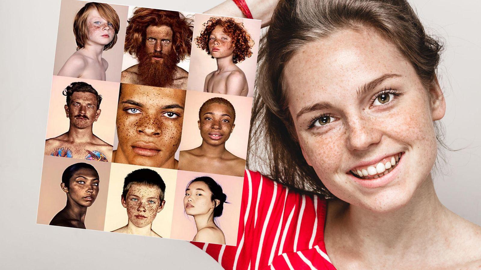 Ylistää ihon kauneutta: Valokuvaajan projekti saa sinut kadehtimaan pisamia - Lifestyle - MTV.fi