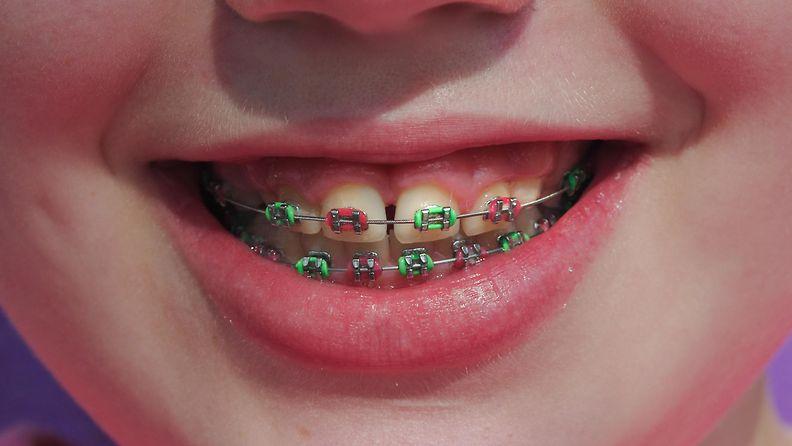 hammasraudat