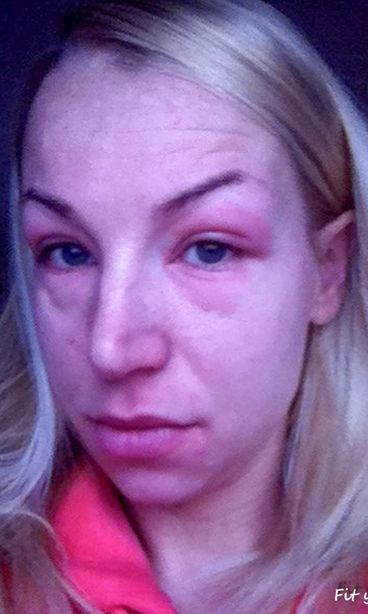 Pesuaine Allergia Ihottuma