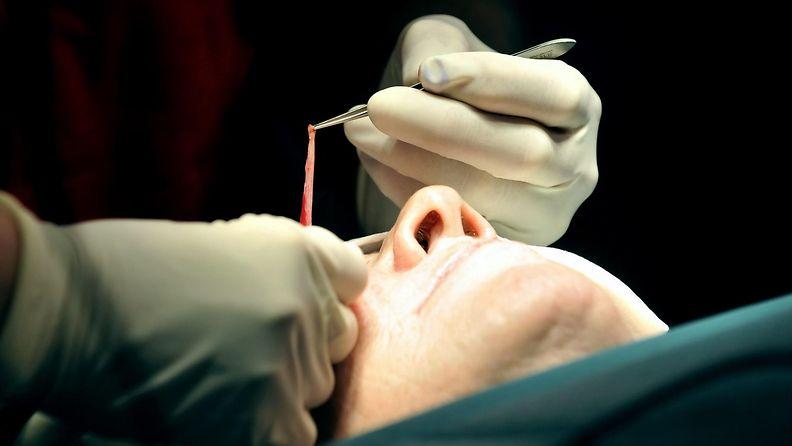 plastiikkakirurgia
