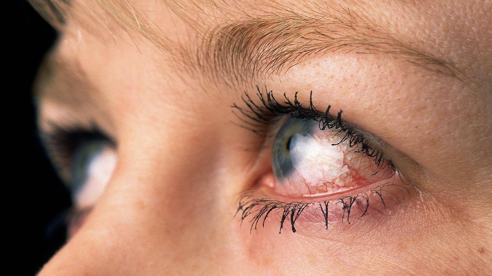 Silmä Tulehdus