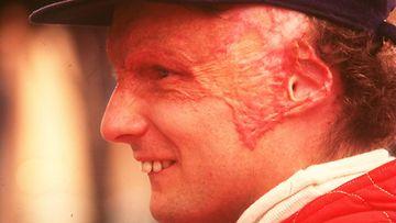 Niki Lauda 1976 onnettomuuden jälkeen.