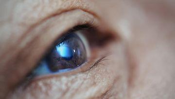 silmä (2)