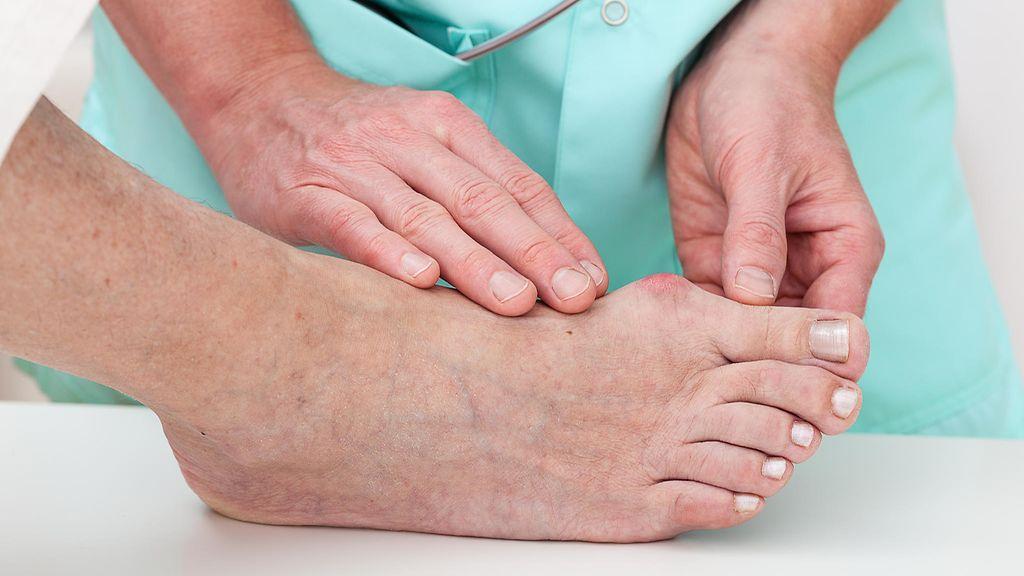 Erilaiset jalkaongelmat on hyvä tarkistuttaa lääkärillä. d20f6ef91b