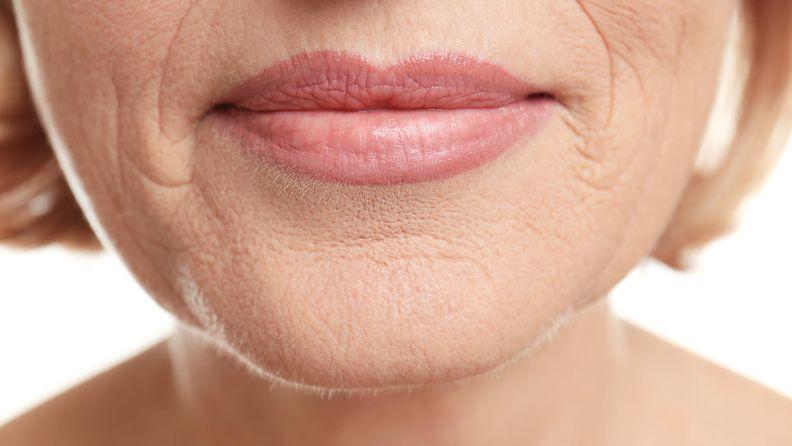 iho vitamiinin puutos