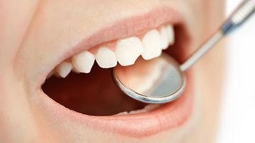 lapsi hampaat