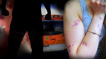 pahoinpidelty nainen, kuvitus