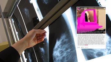 rintasyöpä