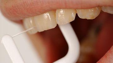 hammaslanka