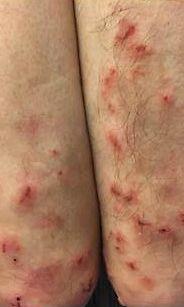Vilja-Allergia Oireet