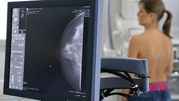 rintasyöpä (2)
