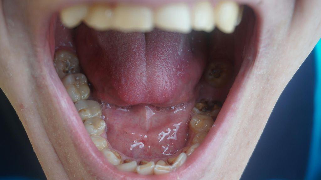 hampaaton suihin Lesbo Suihku suku puoli