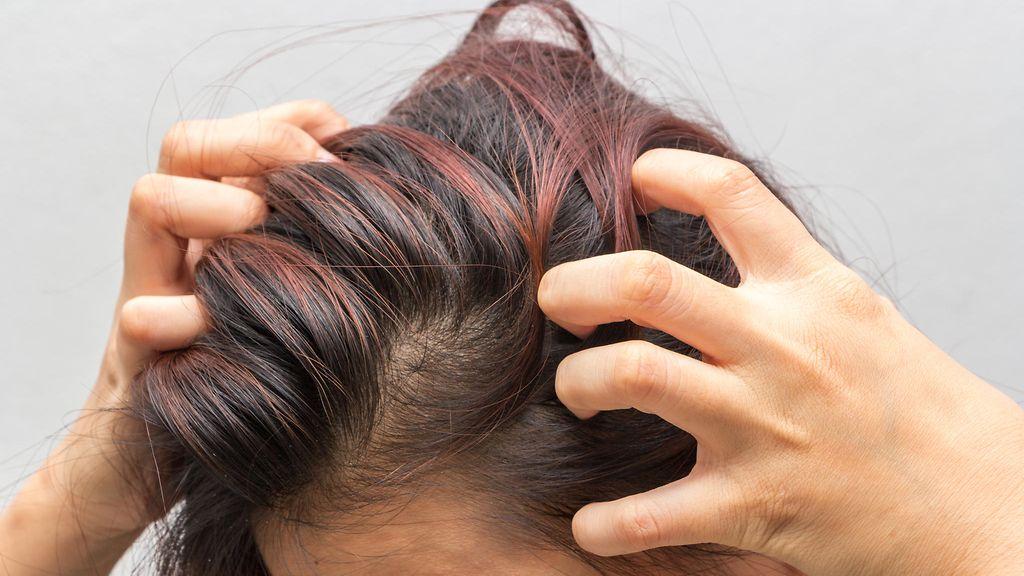 päänahka kutina hilse. Stressi voi pahentaa kutisevaa päänahkaa.  Shutterstock e3982e8845