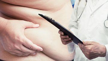 ylipaino (2)
