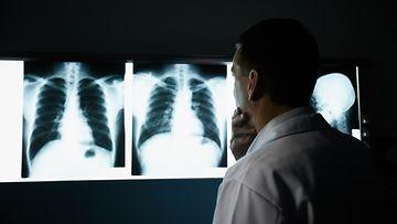keuhkosyöpä seulonta