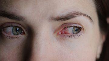 ärtynyt silmä