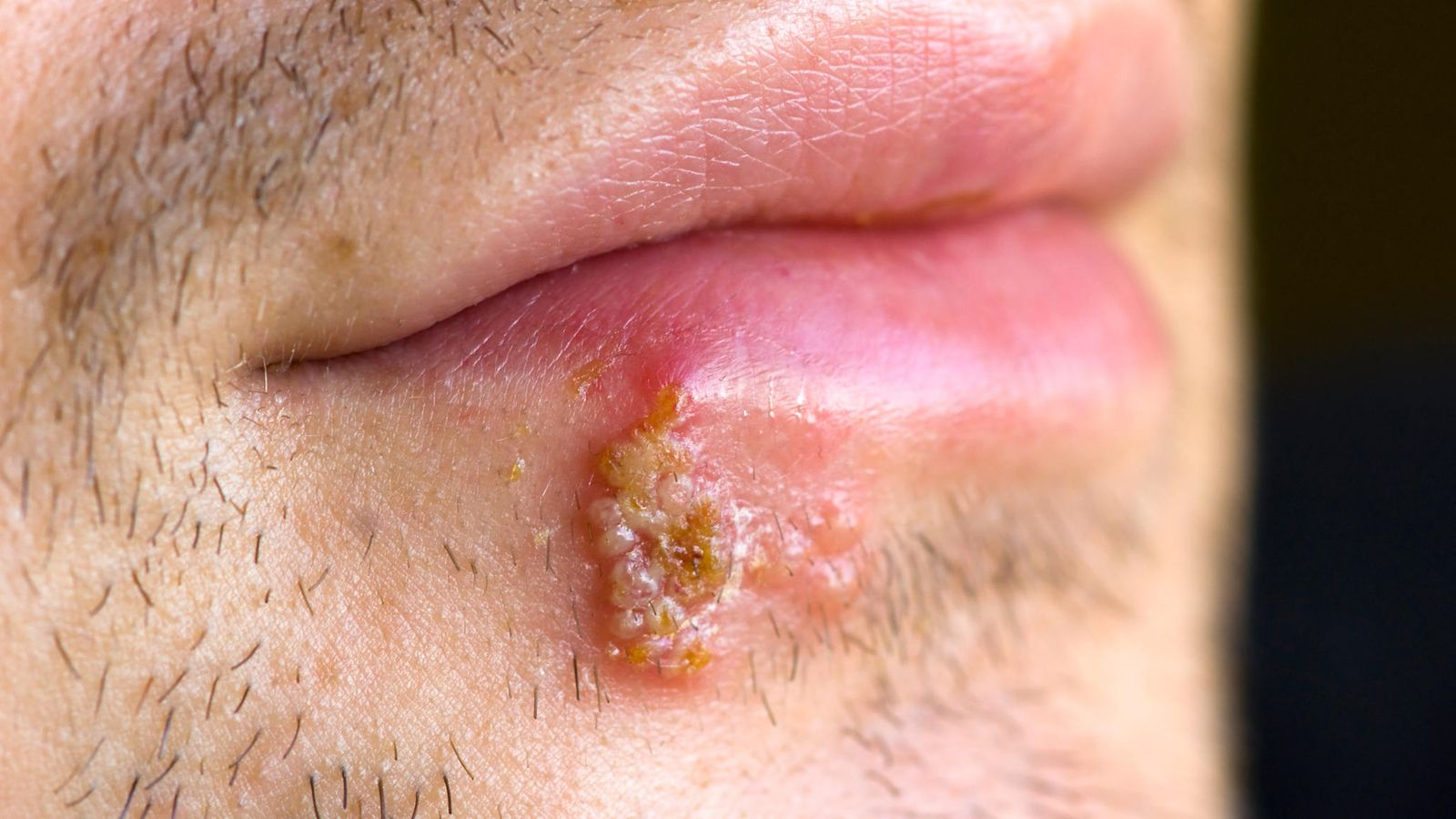 Herpes Käsissä