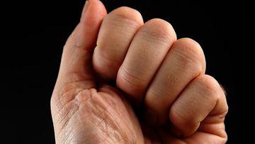 AOP Väkivalta pahoinpitely nyrkki 1.03466123