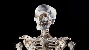 AOP, pääkallo, ihmisen kallo, ihminen, luuranko
