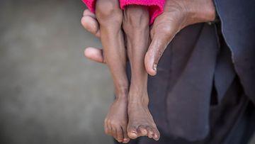 Pelastakaa Lapset nälkiintynyt lapsi