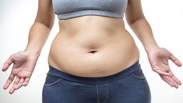 ylipaino, nainen, vatsa