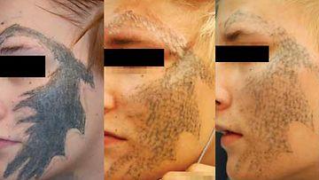 tatuointien poisto kasvot kuva1