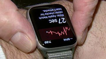 Applen älykello sydänkäyrä