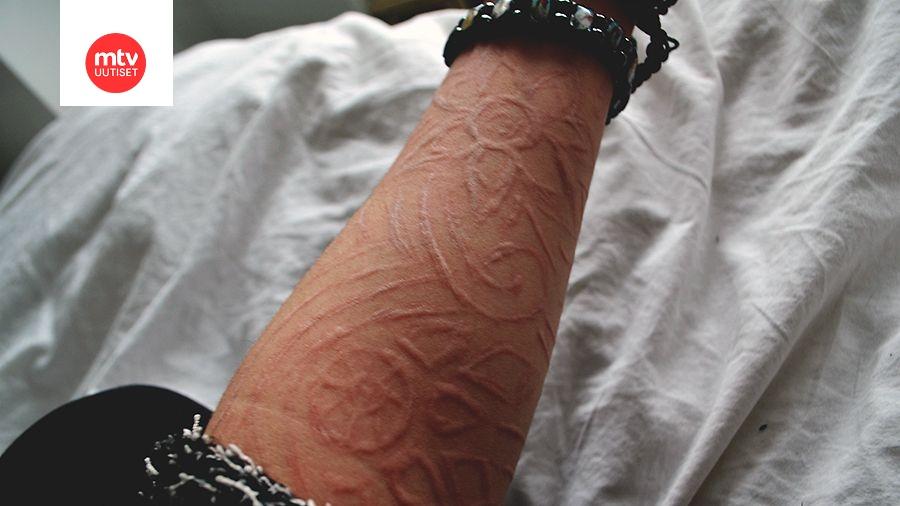 Dermografismi