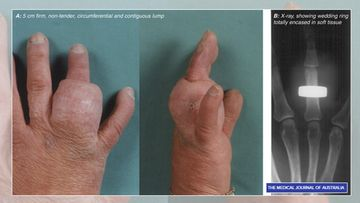 kihlasormus uponnut sormeen