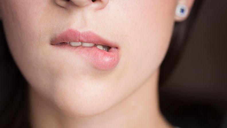 huulten pureminen