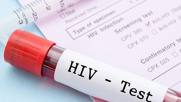 hiv-testi