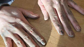 työnaisen kädet